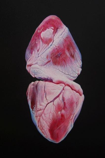 Heatraehill III, Geoffrey Harrison. Image courtesy of the artist and Barts Pathology Museum